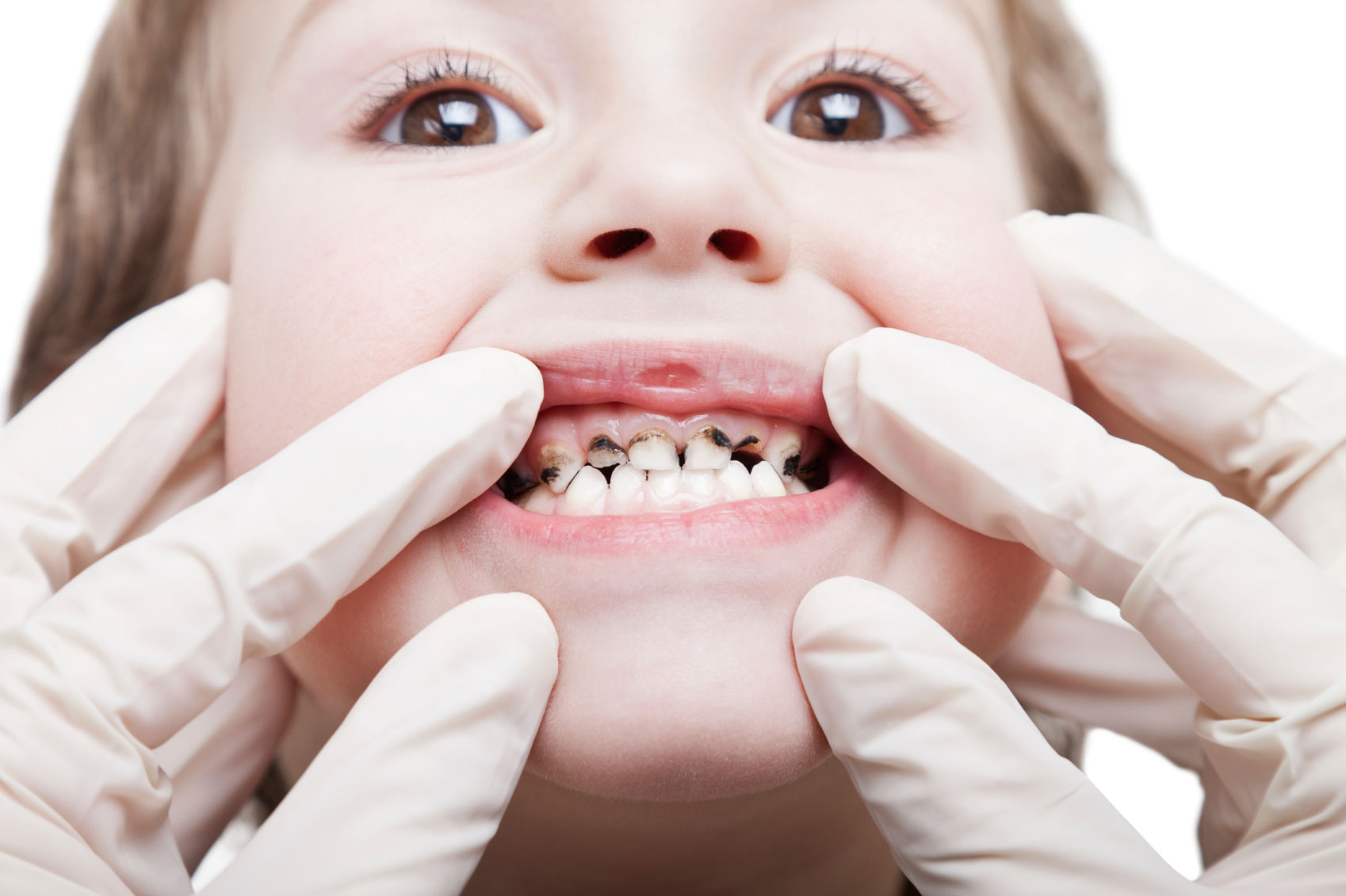 Common Dental Problems | Dumfries Pediatric Dentist | Potomac Pediatric Dentistry