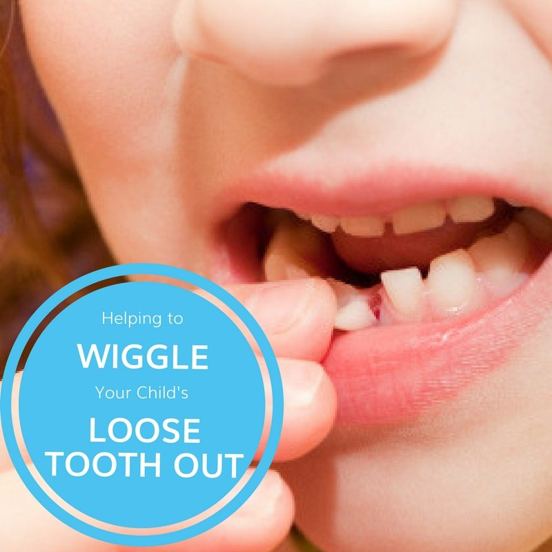 Help Wiggle Your Child's Loose Tooth Out | Potomac Pediatric