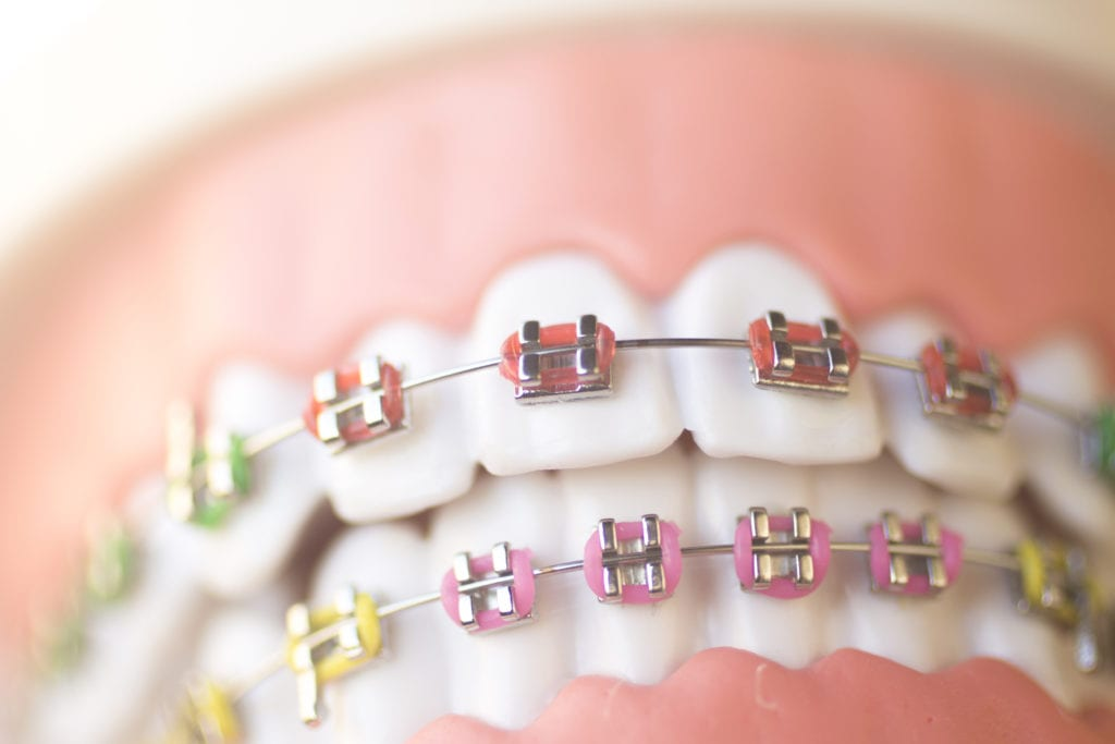 How Braces Work | Dumfries Orthodontist | Potomac Pediatric Dentistry